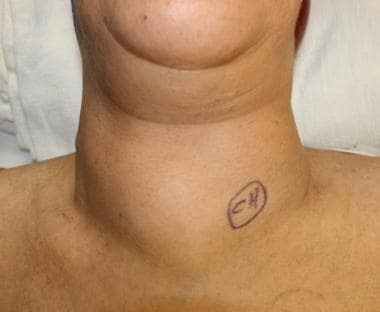 Photograph showing a goiter as a noticeable bilate