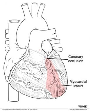 Myocardial infarction and regional affected cardia