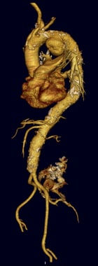Three-dimensional CT reconstruction of thoracic ao