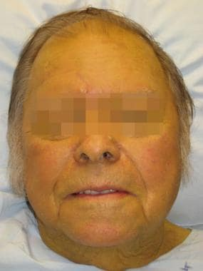 A person with jaundice due to hepatic failure.