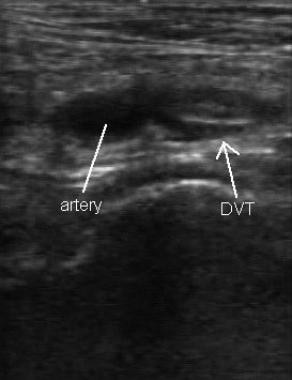 Ultrasonographic image of popliteal vessels with c