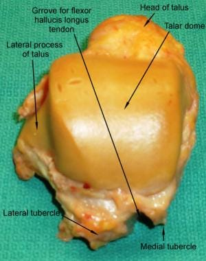 Superior surface of the talus bone.