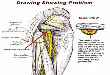 The sciatic nerve and its area of entrapment in th