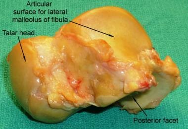 Lateral surface of the talus bone.