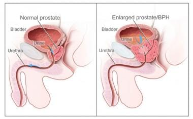 Two-panel drawing shows normal male reproductive a