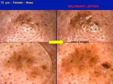 In situ melanoma, malignant lentigo type, detected