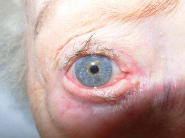 Involutional ectropion of right lower eyelid with