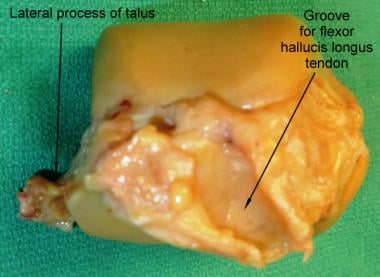 Posterior surface of the talus bone.