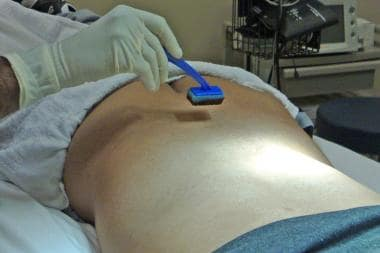 Positioning for lumbar epidural steroid injection.