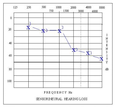 Audiogram depicting a high-frequency sloping senso