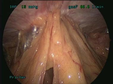 Small bowel adhesions to the periumbilical area an