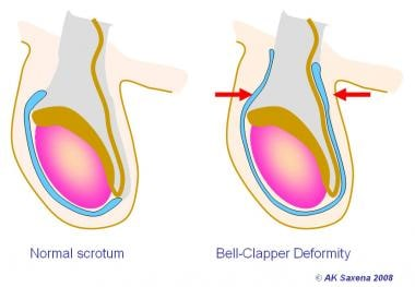 Normal testis (left). Bell clapper deformity (righ