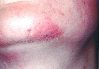 Immediate reaction after laser impact (note erythe