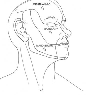 Distribution of cranial nerve V. Illustrated by Ch