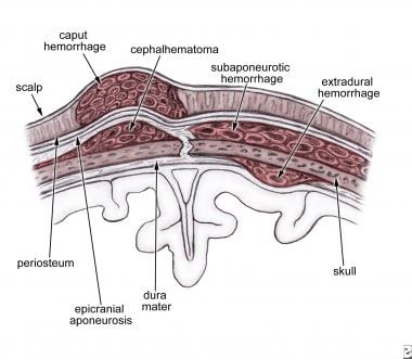 Scalp cross-section and hemorrhage sites.