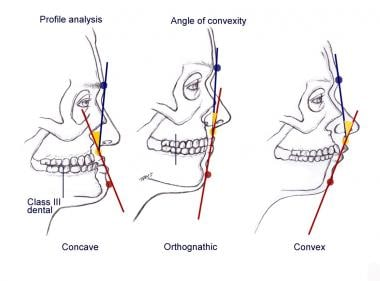 Profile analysis illustrating the degree of facial