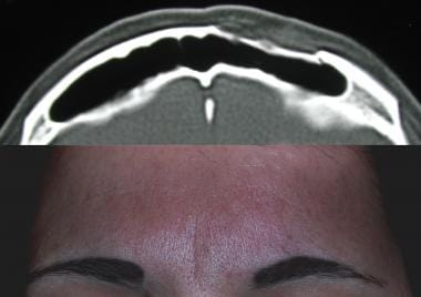 (Top) Axial CT scan of a patient with an anterior