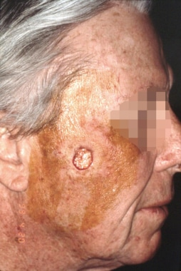 Postoperative Mohs defect on the right cheek of a