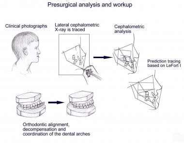 An overview of the clinical, radiographic, and den