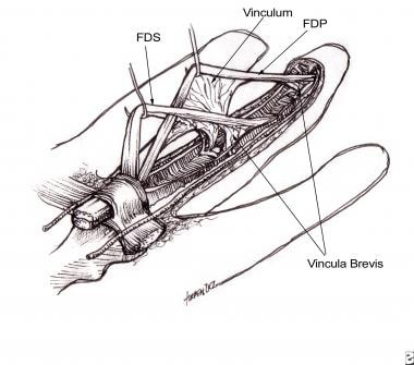 Flexor tendons with attached vincula.