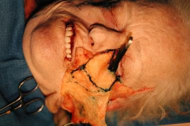 Facelift anatomy. Cadaver dissection demonstrating
