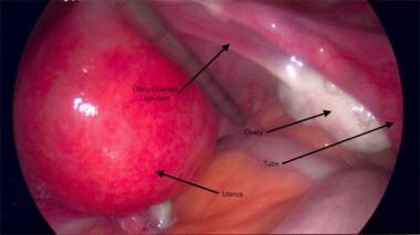 Uterus displaced to the left to expose the uteroov
