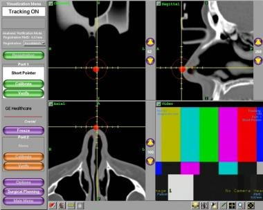Verification of accuracy using patient anatomical