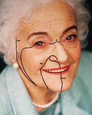 Four main facial lines show the direction of relax