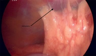 Flimy omental adhesion to anterior abdominal wall.