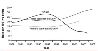 Vaginal birth after cesarean delivery rates.