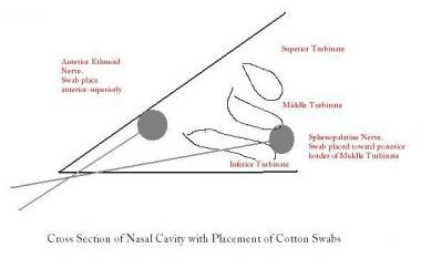 Placement of cotton swabs in the nasal cavity.