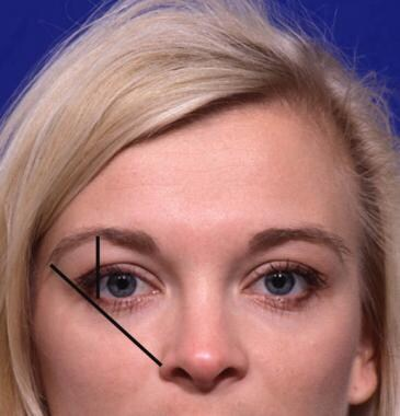 Woman demonstrating ideal brow aesthetics. Note th