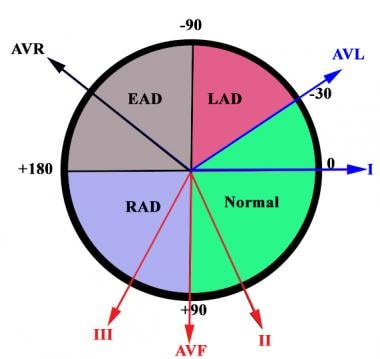 Electrocardiographic axis. Normal axis is between