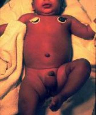 Emergency department photograph of infant with sep