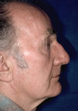 Case 3. Postoperative result at 1 year.