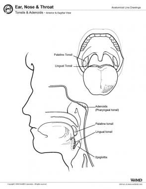 Tonsils and adenoids, anterior and sagittal view.