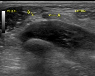 Ultrasound guided View of the Transverse process.