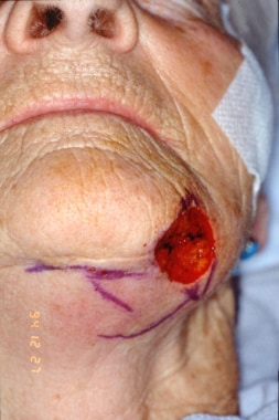 Postoperative Mohs surgical defect over the left c