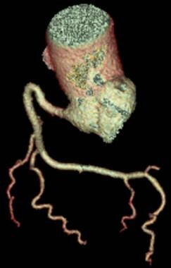 Right coronary artery (RCA): Volume-rendered CT im