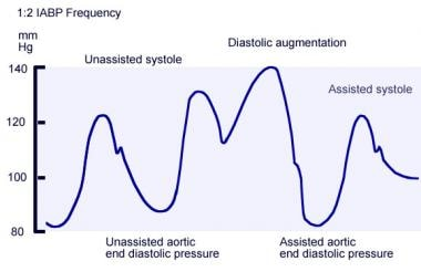 Annotated arterial pressure tracing obtained from