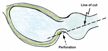 Perforation at the inferior bladder neck can easil