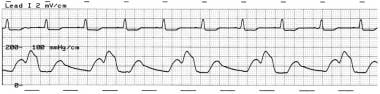 Intra-aortic balloon pressure tracing showing the