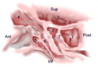 Anatomy of the lateral nasal wall, schematic: (1)