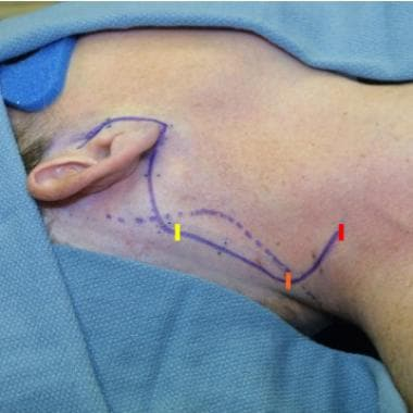 Cosmetically guided parotidectomy incision, design