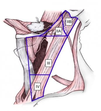 Lateral neck dissection.