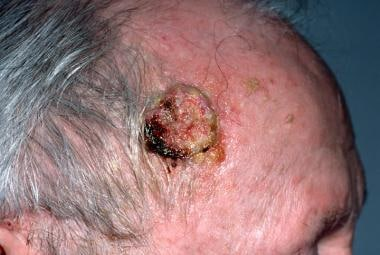 Large, sun-induced squamous cell carcinoma (SCC) o