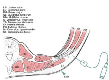 Cross-section of the abdominal wall layers. The TA