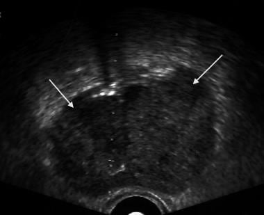 Axial image of a prostate. White arrows show the a