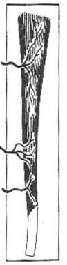 Type II, vascular patterns of the muscle and muscu