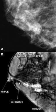 Invasive ductal carcinoma detected with screening